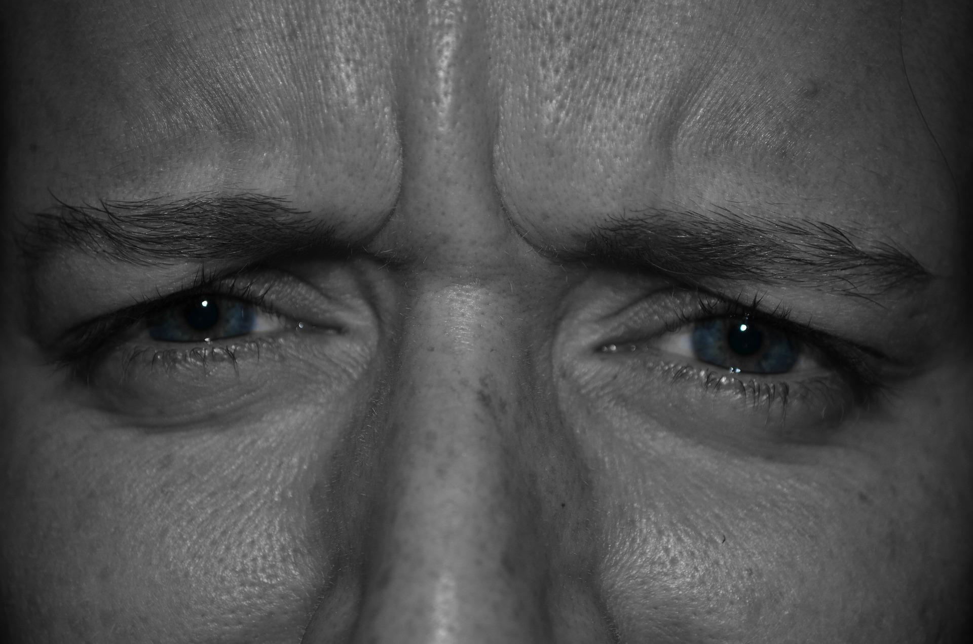 arrugas de expresión